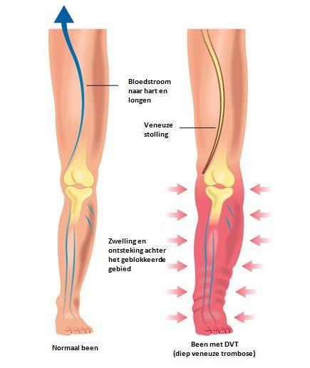 trombose en embolie
